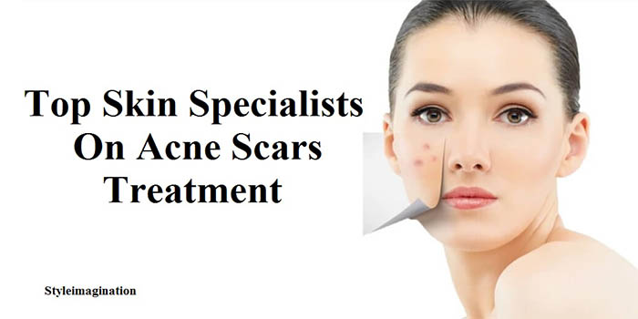 Acne Scars Treatment