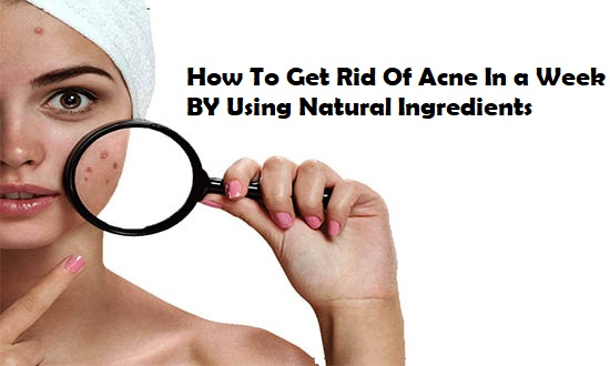 How To Get Rid Of Acne In a Week