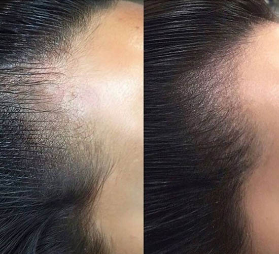 Hairline Microblading