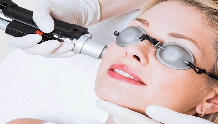 Type of Laser Treatment for Face
